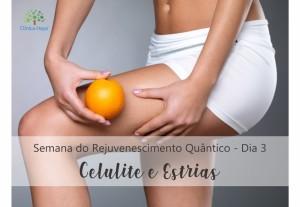 DIA 3 - Celulite e Estrias