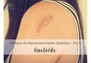 DIA 6 - Queloide